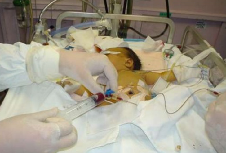 Bilde av nyfødt med gulsott, hentet fra slideshare.net