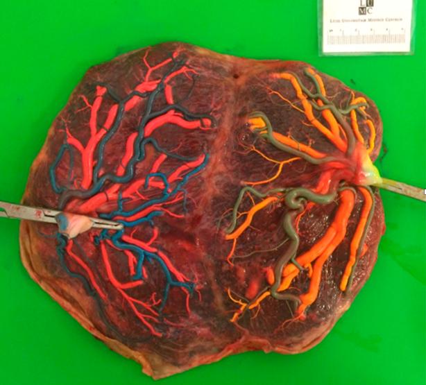 Illustrasjonsfoto placenta etter gjennomfør laserbehandling, Cingulim