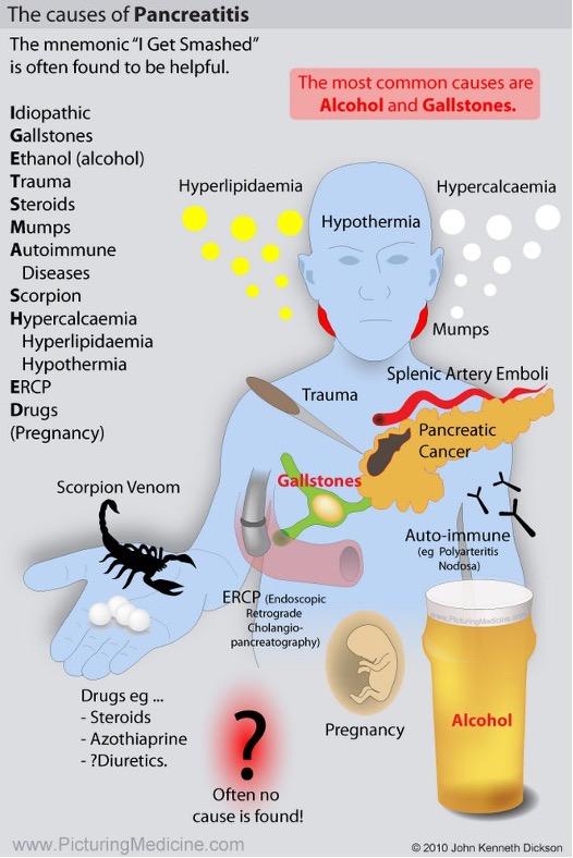 Pankreatitt-cingulum